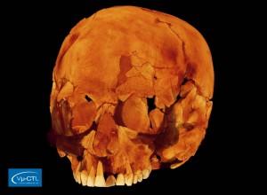 Schädel eines anatomisch modernen Menschen aus Israel, ca. 100.000 Jahre alt, Auflösung 70µm