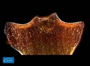 menschlicher Schienbeinkopf (Tibia), 60µm