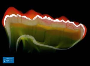 Zahn eines Höhlenbären (Ursus spelaeus), geschnitten, Schmelz und Dentin sind sichtbar, Auflösung 21.5µm